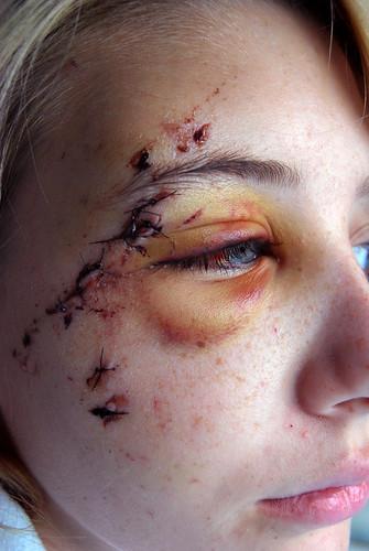 Blood Vessel In Dog S Eye