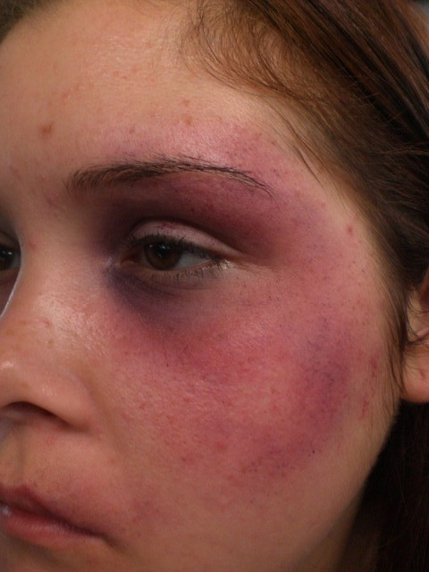 Bruised Face 1 | Bruised Face at Cosmix. Special FX makeup ...