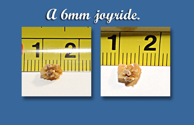 kidney stone 6mm just one of the many reasons to enjoy l