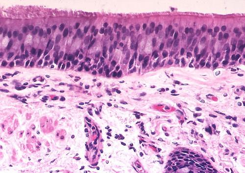 Lungepitelets cilier sitter tätt, tätt allra överst i bilden.