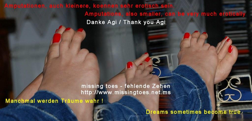 Missing Toes - Fehlende Zehen