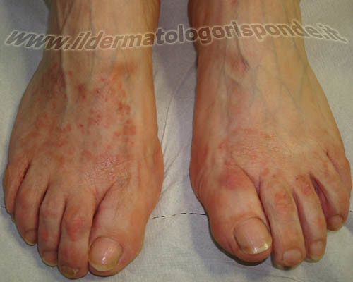 Dermatite localizzata ai piedi | Flickr - Photo Sharing!: https://www.flickr.com/photos/dermatologiaonline/3570628487