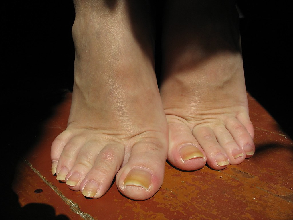 Natural Long Toe-Nails  More Photos Big Size And Video In -2974