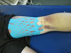 Kinesio Taping- Bruise Pics 4