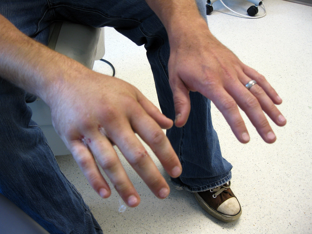 how to tell if your hand is broken
