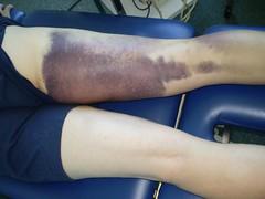 Kinesio Taping- Bruise Pics 1