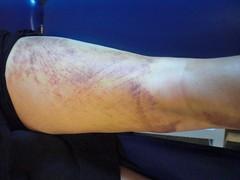 Kinesio Taping- Bruise Pics 6
