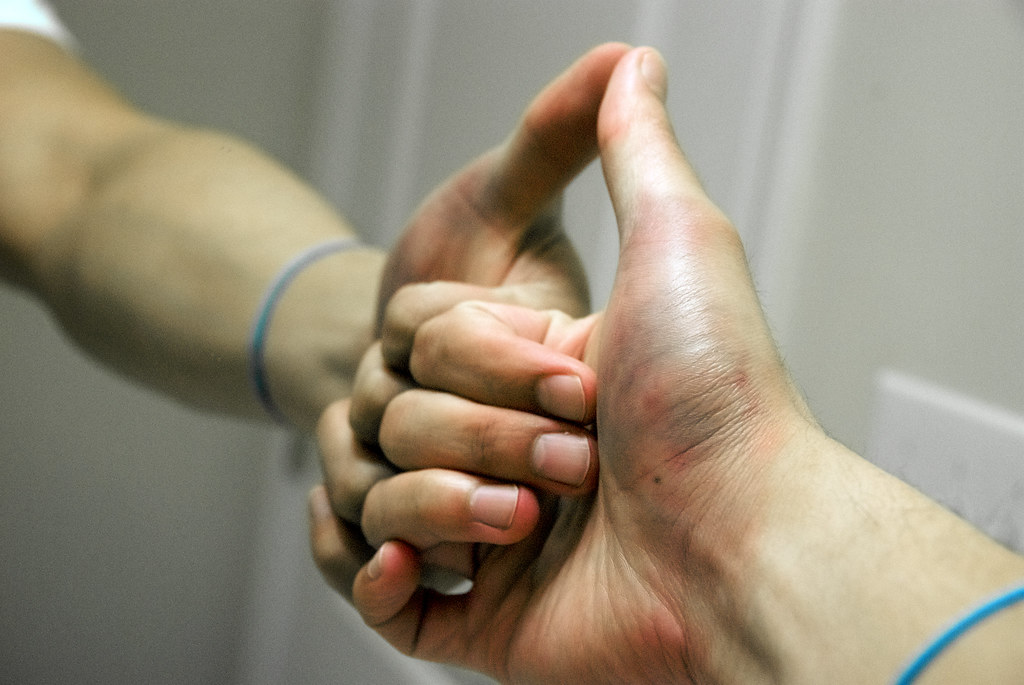Talk. You treatment for broken thumb bones