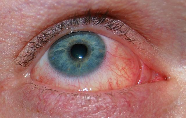 Cat Allergies Eye Twitch