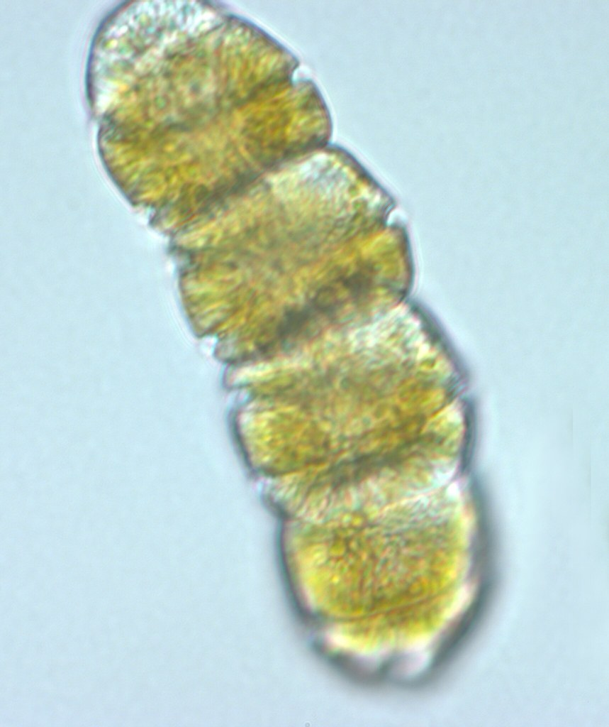 One Celled Organism >> Cochlodinium polykrikoides (light micrograph ...