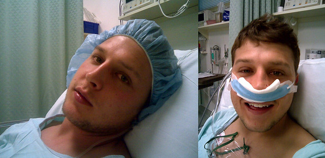 Septoplasty Before And After My Son Has Had A Pretty