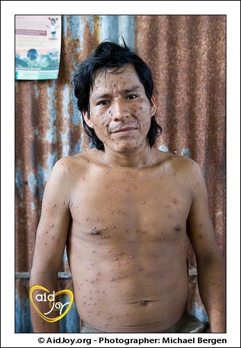 Bartonella Bacilliformis Verruga Peruana Ravages A Man I