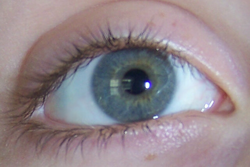 Central Heterochromia | Okay, I finally figured out how to ...
