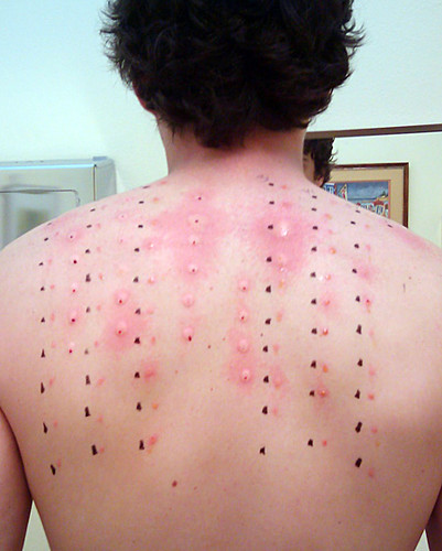 Hives From Alcohol Drinking