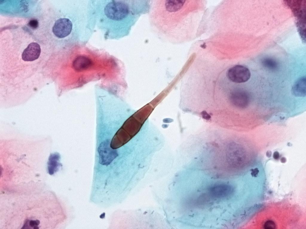 Pap Smear Dematiaceous Fungus Conidia A Single Conidia
