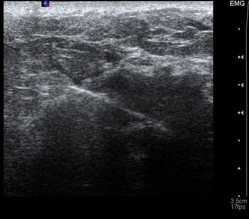 ultrasound guided core breast biopsy