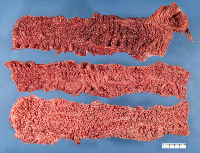 Familial adenomatous polyposis | www.humpath.com/colonic-fam… | Flickr