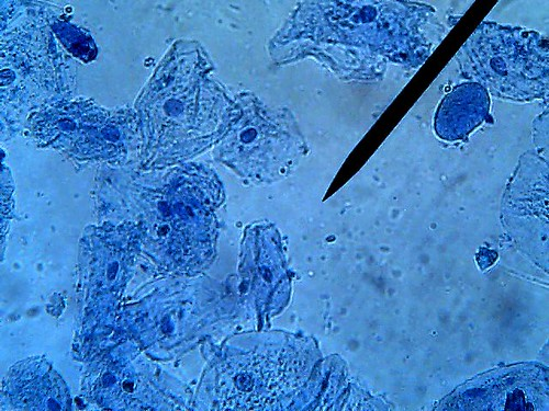Cheek cells 400x flickr photo sharing for Methylene blue for fish