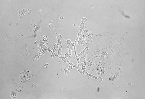 research papers on candida albicans