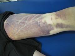 Kinesio Taping- Bruise Pics 3