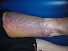Kinesio Taping- Bruise Pics 5