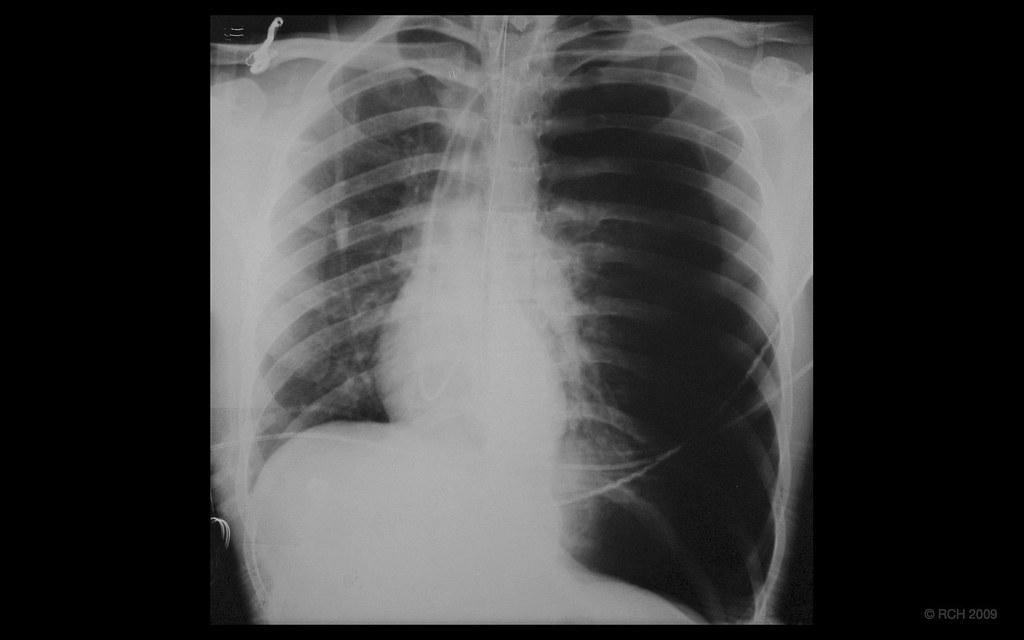 Tension Pneumothorax Left Tension Pneumothorax