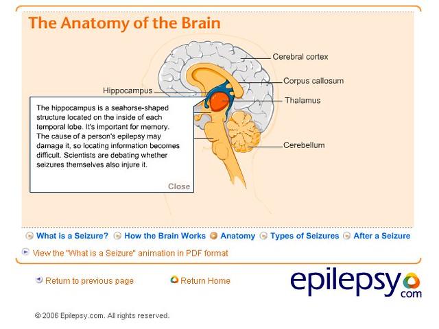 informative speeches on epilepsy