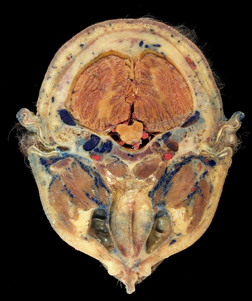 A Plastinated Cross Section Of A Human Head Nmhm 1998 003