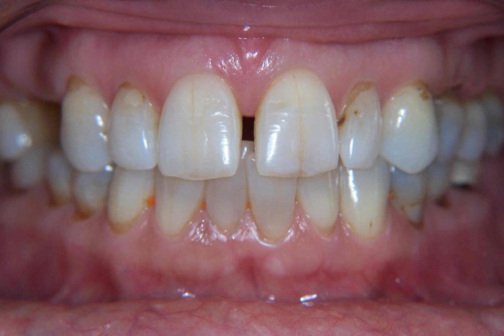 Gap between front teeth celebrity