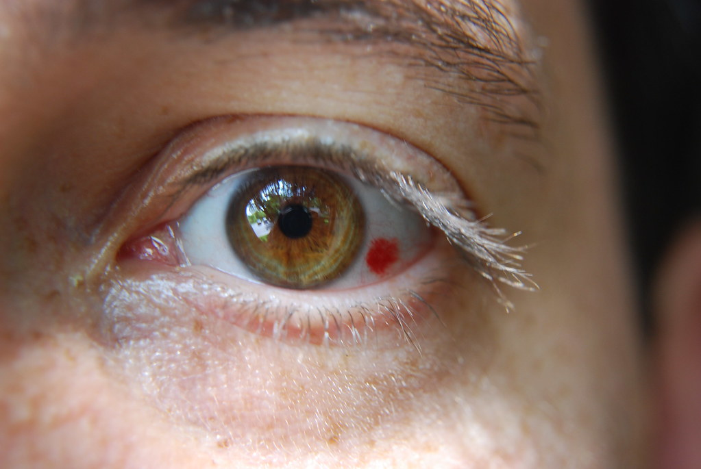 Causes Of Eye Cataract In Dogs
