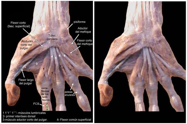 Músculos de mano derecha (vista palmar) | Cátedra de Anatomía Normal ...