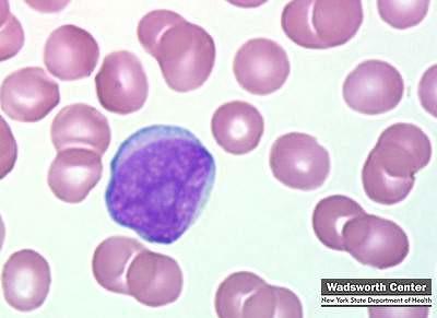 leucemia mieloide tipo: