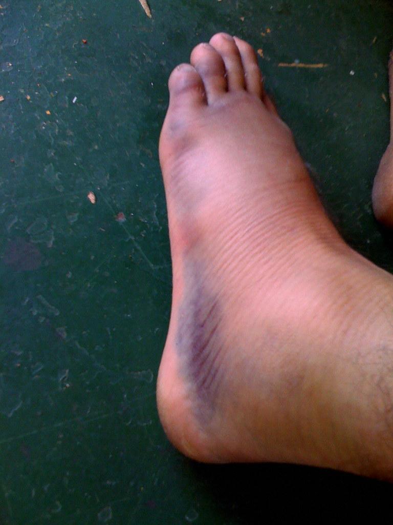 Photos Of Purplish Swollen Feet 85