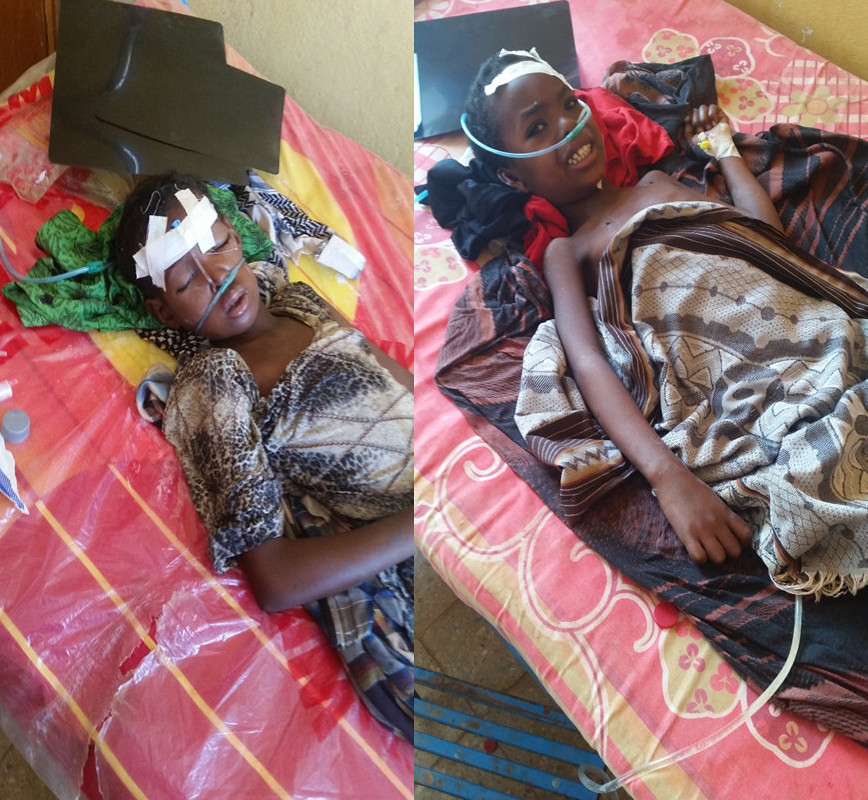 Raxxo, la niña de la izquiera y Abdi el niño de la derecha, gravemente afectados por el tifus.