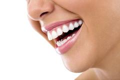 Los cálculos dentales y sus efectos negativos en la salud dental