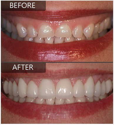 Laser Gum Surgery Dental Implants Are The Most Advanced