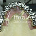implante total metaloceramica