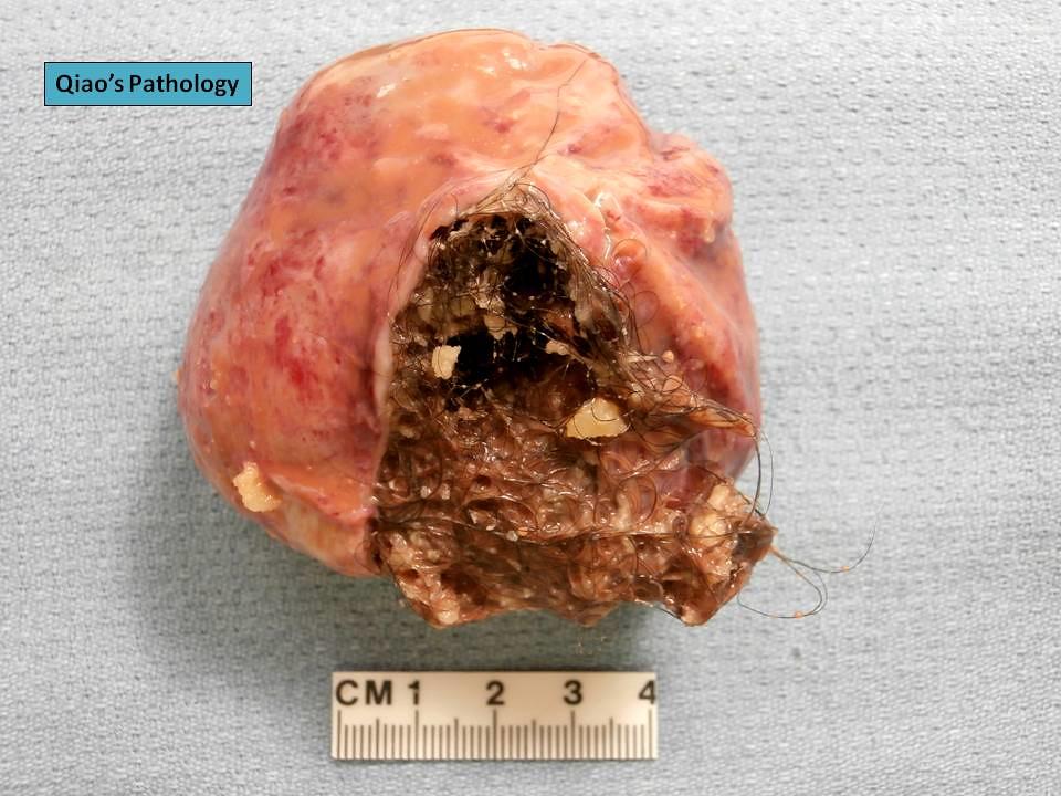 Qiao's Pathology: Ovarian Dermoid Cyst (Mature Cystic Tera ...