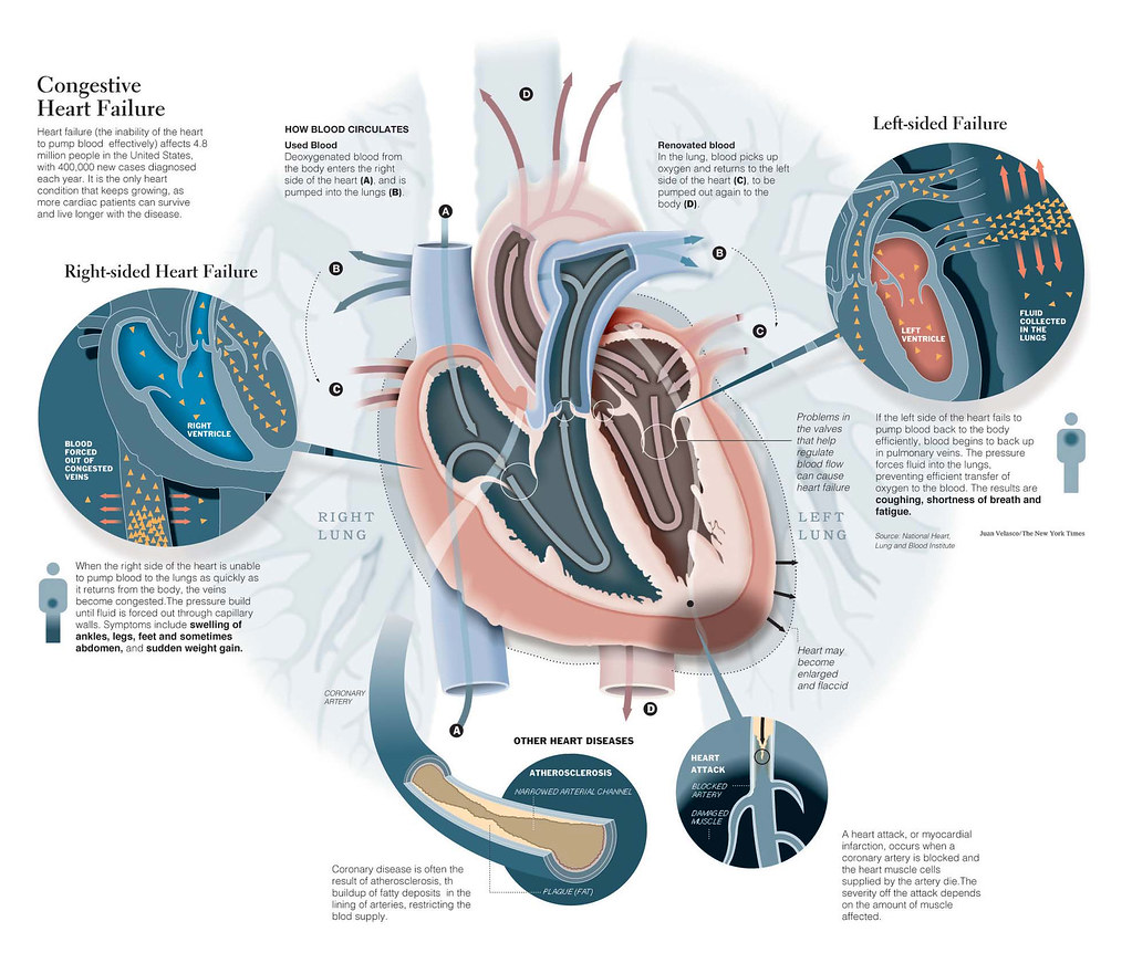 overview of congestive heart failure essay