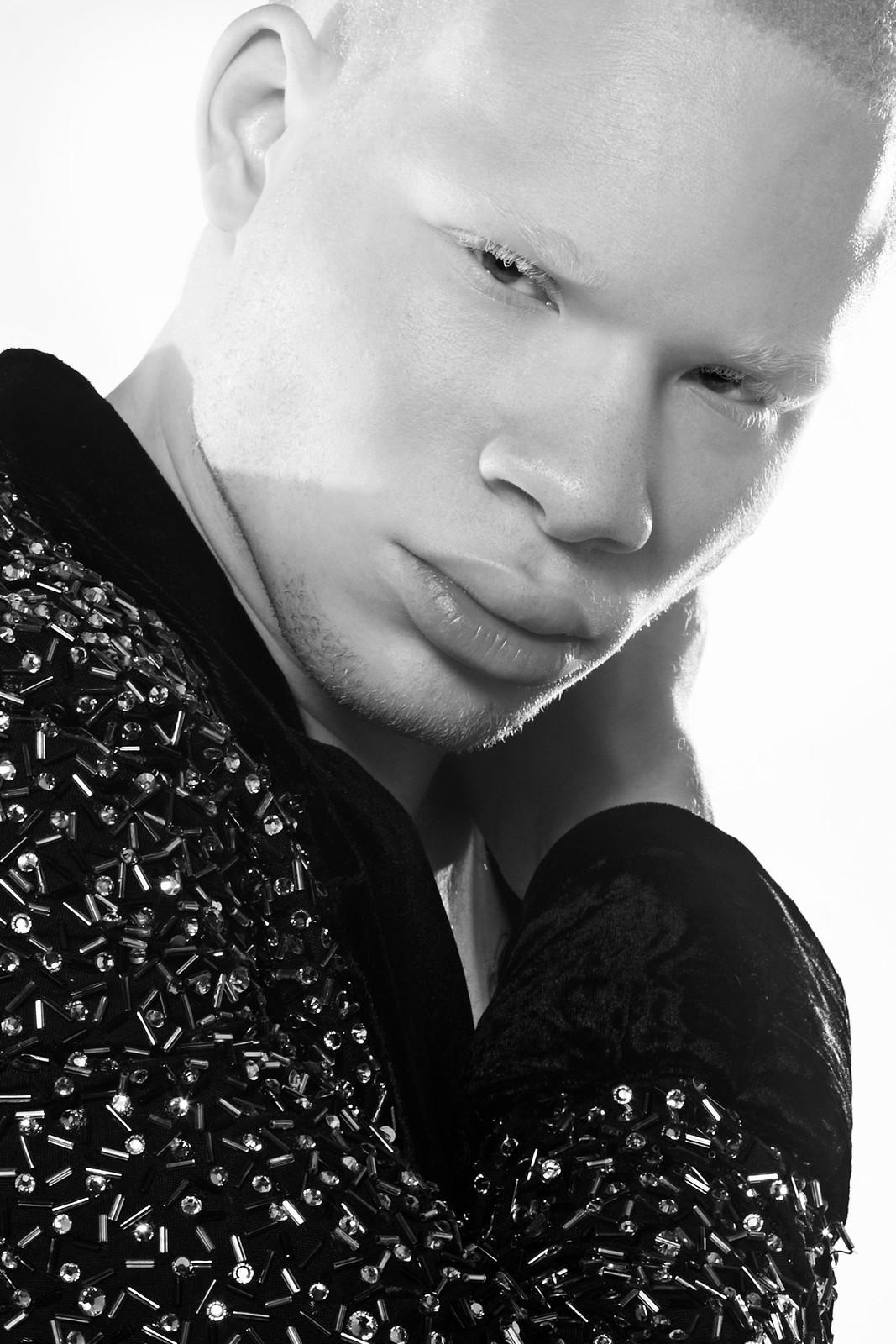 Black Albino Actor Model Albino Actor