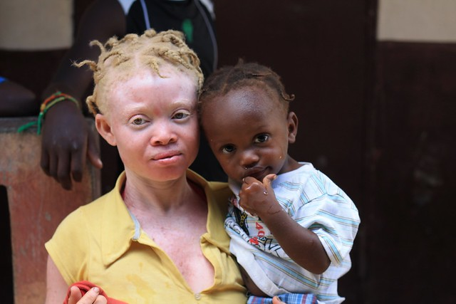 Albinos are killed and dismembered due to a widespread belief that charms made from their body parts bring good fortune and prosperity.