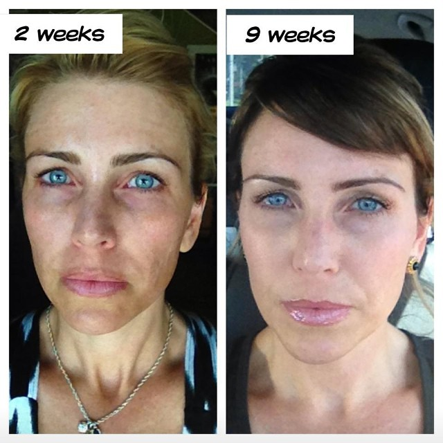 Look At This Just 9 Weeks After Using Rodan Fields Revers