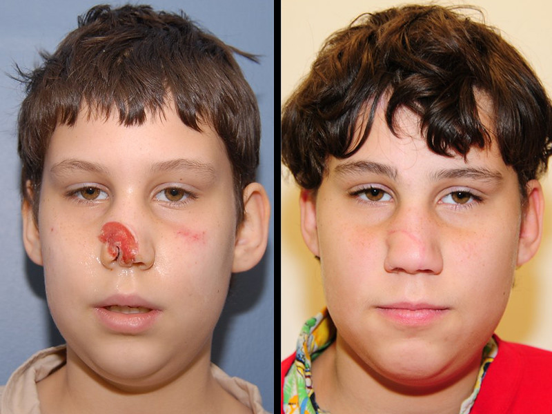 Nose Reconstruction For Child With An Animal Bite 11