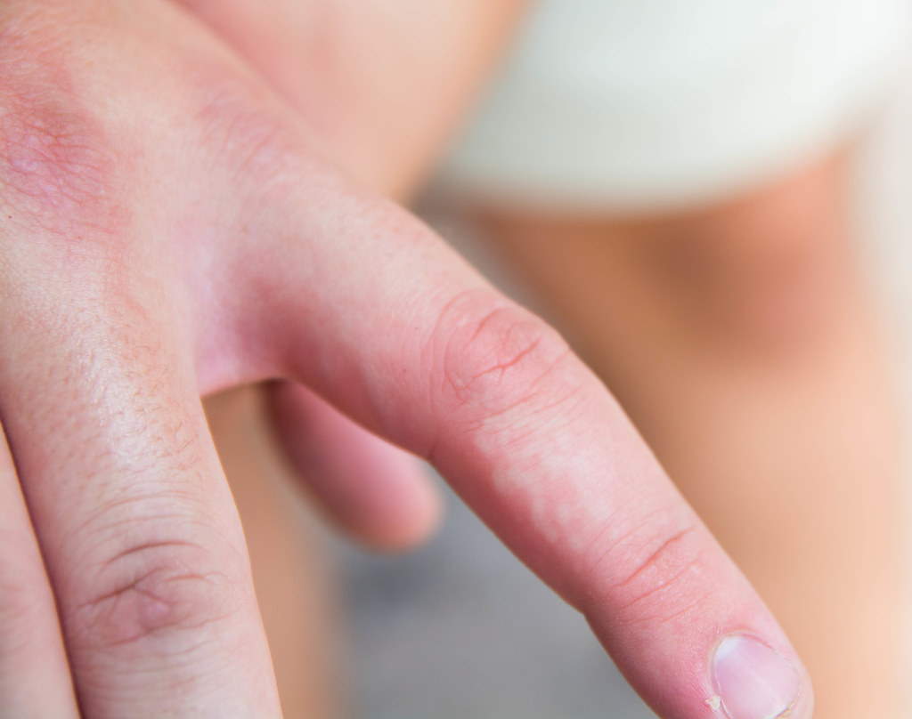 Bumps on the Skin: Check Your Symptoms and Signs