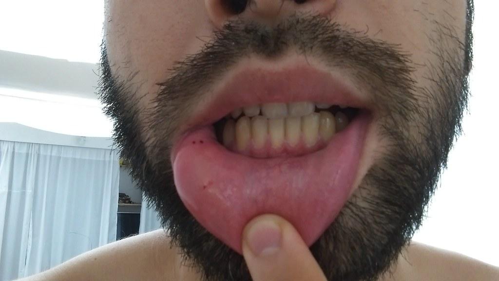 Image Result For I Got Bite