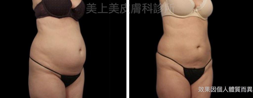 最新的瘦大腿和瘦小腹的冷凍減脂機器,不用抽脂就有體型雕塑的效果,不想運動就想減肥的人,隔空減脂是你最好的選擇。不管是冷凍減脂或隔空減脂,美上美是你首選