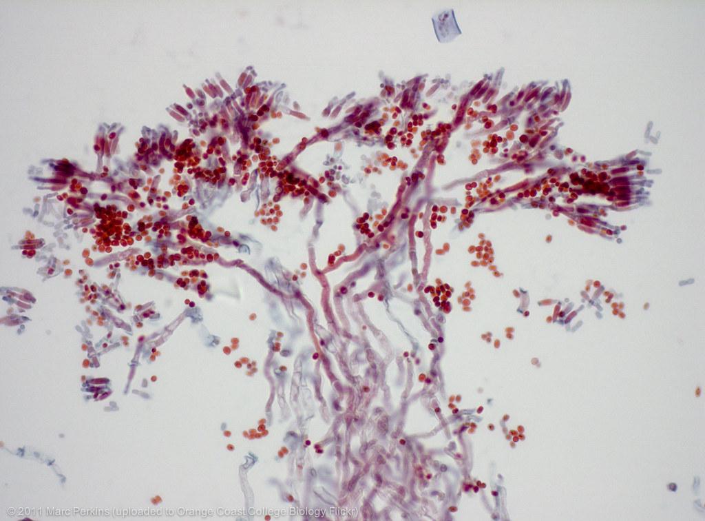 Penicillium Slide Labeled Conidia