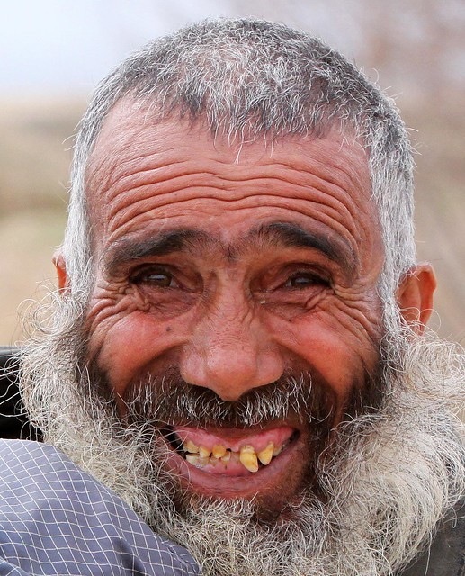 Afgan: Afghan Man Smiles For A Photo [Image 7 Of 14]