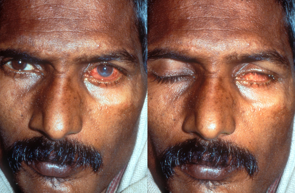 Image Result For Pink Eye In