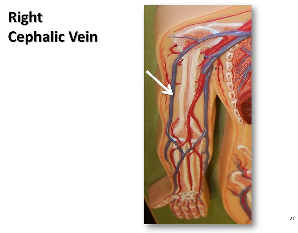Cephalic vein anatomy